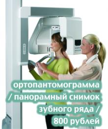 ортопантомограмма 800 рублей - 240x288