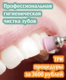 professionalnaya-chistka-zubov-tri-protsedury-za-3600-rublej-240x288-oktyabr-2016-2