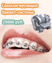 Акция – Самолигирующая брекет-система + Консультация + Фиксация за 25000 рублей -4