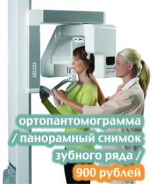 ортопантомограмма - 240x288 — 900 рублей – новый цвет